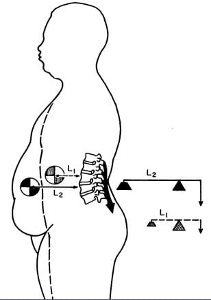 When a person gains abdominal weight (obesity, pregnancy), the first class lever system of upright posture is altered in such a manner that the intervertebral disc and facet joints bear significantly more weight. To counterbalance the weight, the muscles on the other side of the fulcrum (spine) must constantly contract with more force, or the person would fall forward. The black arrow attached to the posterior spinal elements represents the muscle contraction