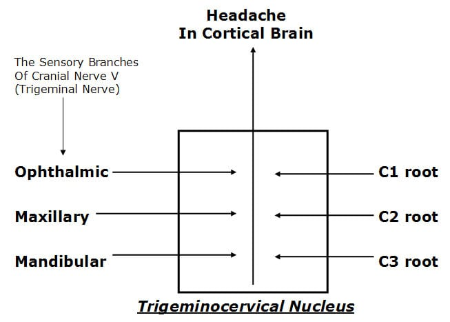 cervicogenic headache pathway