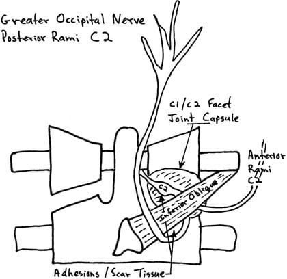 adhesions interfering with nerve function