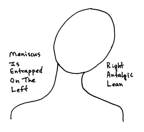 right antalgic lean