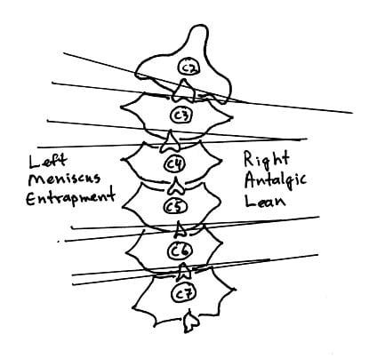 right antalgic lean cervical vertebrae