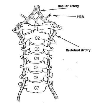 singular basilar artery