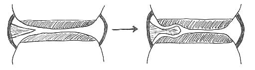 With repeated mechanical impingement between the articular surfaces, the synovial fold may differentiate into fibrous tissue to varying degrees. The fibrous apex of the synovial indents the articular hyaline cartilage, further entrapping the apex of the synovial fold. Manipulative therapy may traction and separate the articular surfaces apart, releasing the entrapped synovial fold.