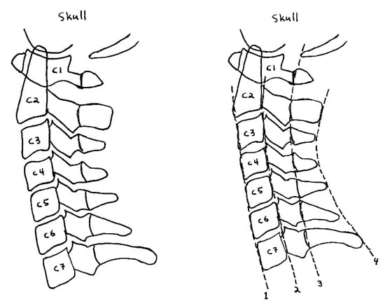 The line drawn on the tips of the spinous processes from C2 to C7. This line should also be a smooth and gentle curve, convex anteriorly. This line represents the anterior margin of the spinal canal, where the spinal cord resides.
