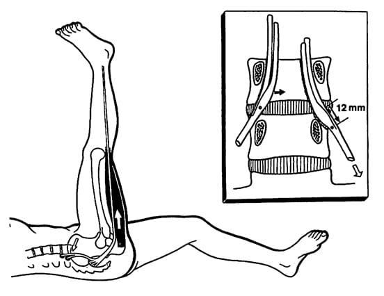 Straight Leg Raising Test