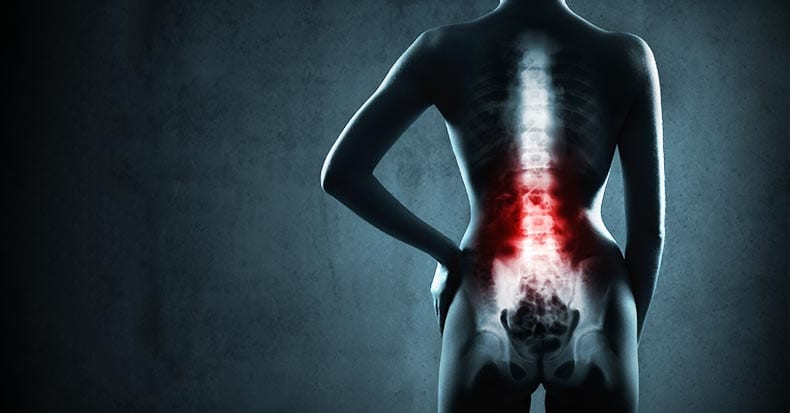 Chiropractic Care and X-Rays for Low Back Pain