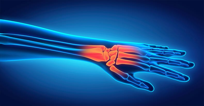 7 Possible Causes of Carpal Tunnel Syndrome
