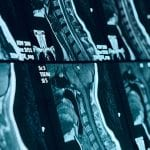 Arnold-Chiari Malformation and Chiropractic