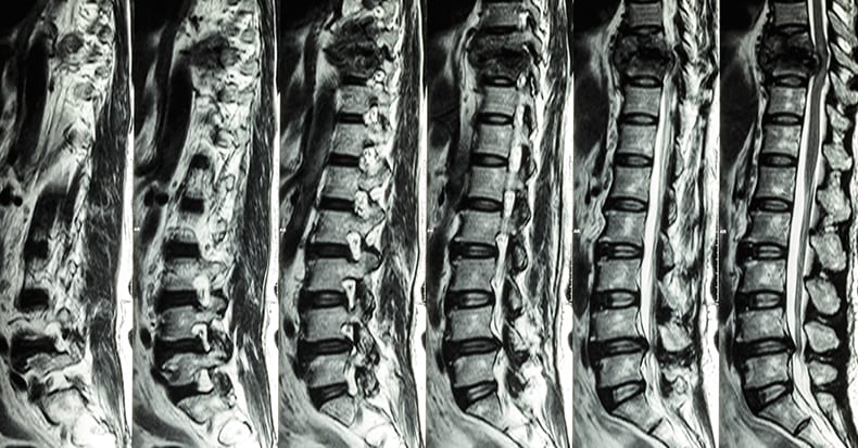 Truths & Myths of MRI for Low Back Pain