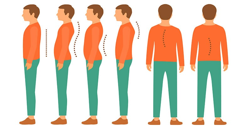 Exercises for Improving Cervical Posture