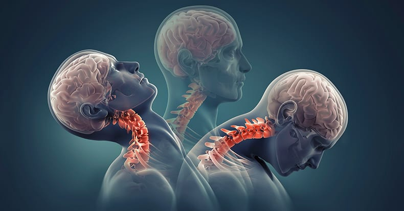 Neck Pain Prevention Tips