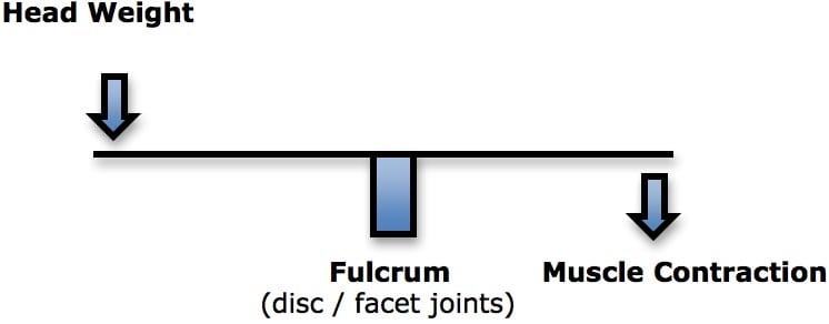When the human head is bent forward, as in looking down, the loads on the fulcrum (disc and facet joints) would be the weight of the head multiplied by the distance from the fulcrum, added by the counter-balancing contraction of the posterior spinal muscles. This counterbalance contraction of the cervical spine muscles is fatiguing to the muscle, increases the compressive loads on the fulcrum tissues, and causes a constant increased tension in the muscles. This can cause headaches.