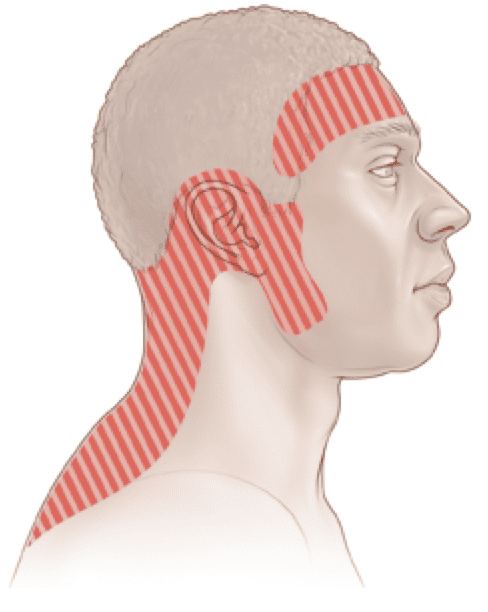 Although there may be some overlap, Cervicogenic Headaches and Tension-Type Headaches can be distinct. Tension-Type Headaches result from increased tension in the muscles of the upper back and neck, the head, and the temporomandibular joints. Hence, Tension-Type Headaches are often referred to as Muscle Tension Headaches: