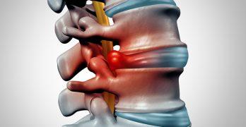 Lumbar Spine Herniated Intervertebral Disk with Discogenic Radiculopathy/Sciatica