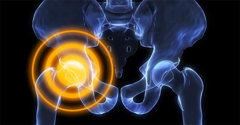 Do Labral Tears Cause Hip Pain?
