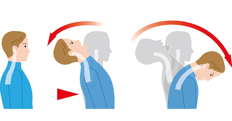 Whiplash and Mid-Back Pain – How Can This Happen?