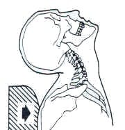 Trunk Movement Neck Inertial Injury