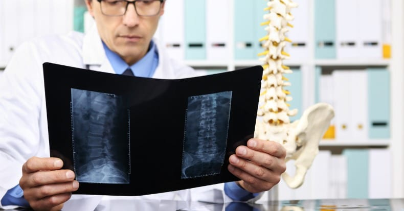 When Spinal Fusion Is Needed…