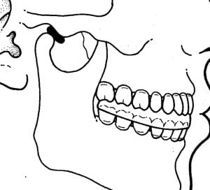 temporomandibular joint side view