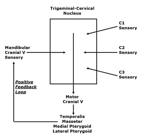 "In a unique anatomical occurrence, the sensory nerve (mandibular cranial V) that innervates the TMJ, the motor nerves that move the TMJ, and the sensory nerves of the upper neck (cervicals 1-2-3), all communicate with each other in a ""box,"" depicted above, called the trigeminocervical nucleus. Functionally, this means that neck problems that involve the upper cervical spine nerve roots (C1, C2, C3) have the ability to influence the motor nerves that control the muscles that cross the TMJ. Again, upper neck problems can activate the four muscles that move the TMJ (temporalis, masseter, medial and lateral pterygoid muscles). A muscular imbalance of the TMJ can cause TMJ biomechanical stress and inflammation. The consequence of this is depolarization of the sensory nerves that innervate the TMJ, causing pain and other symptoms (discussed below). This TMJ sensory disturbance sends afferent information into the trigeminocervical nucleus, creating a positive feedback loop (see above drawing), ultimately resulting in temporomandibular dysfunction (TMD)."