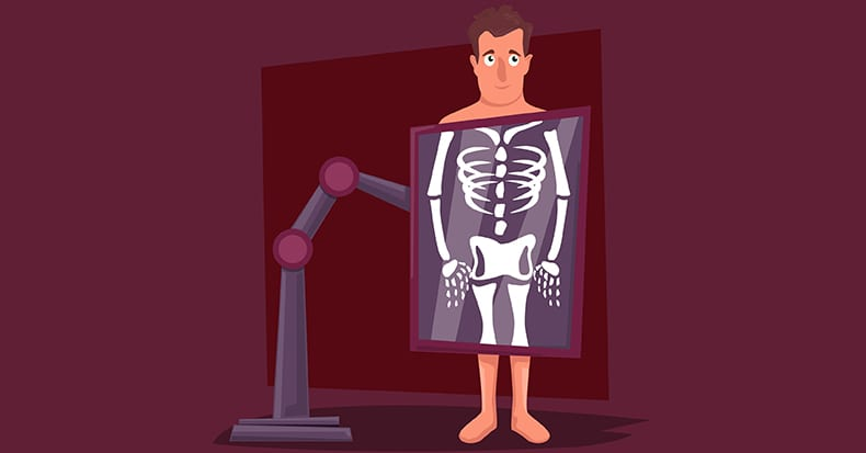 Chiropractors and X-Rays
