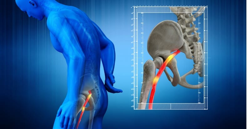 The Lower Back, Leg Pain, and Sciatica