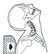 <br /> Trunk-Head Movement Neck Inertial Injury<br />